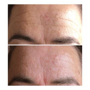 Billede af pande før og efter