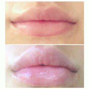 Billede af læber før og efter